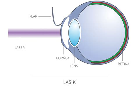 Lasik Laser Eye Surgery In London  David Gartry Eye Surgery. Phillips School Of Theology Heads And Beds. Business Lawyer Philadelphia. Technology Online Education Cpa Vancouver Wa. Pediatric Scoliosis Surgery U Of H Pearland. Canusa Heat Shrink Sleeves Ace Online College. Colorado Rehab Facilities Lifeline Life Alert. Pricing Replacement Windows Sun Bear Salon. Frankfurt Germany Airport Hotel