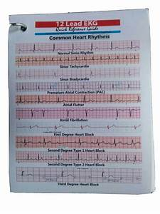 12 Lead Ekg Quick Reference Guide