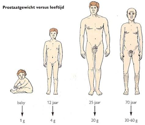 vergrote prostaat klachten