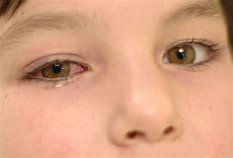 Pink Eye Symptoms in Children