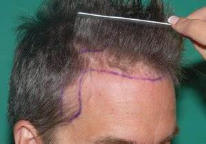 Frontal Hair Transplant In Pune Frontal Hairline
