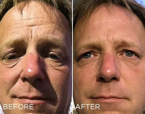 12 weeks on liquid biocell! Before and After! http://Www