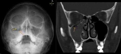 orbital blowout fracture radiology at st vincent s