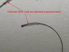Trichotillomania - obsession with hair follicle | Trich ...
