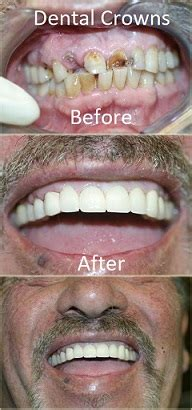 dental crowns cosmetic dentistry oxnard dentist