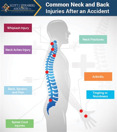 Why Are Neck And Back Injuries So Common After An Accident?