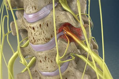 hackettstown pinched nerve severe  pain treatment ess