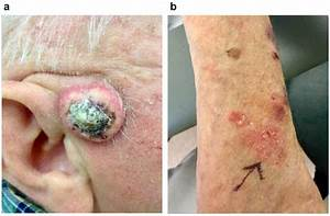Clinical Presentation Of Squamous Cell Carcinoma  Scc  And