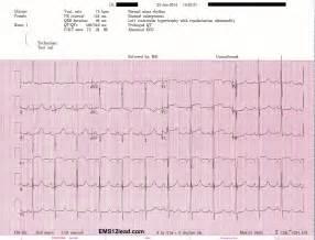 STEMI 12 Lead EKG Interpretation