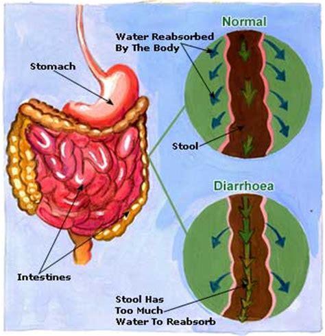 Diarrhea   causes, symptoms and treatment   Health Care «Qsota»
