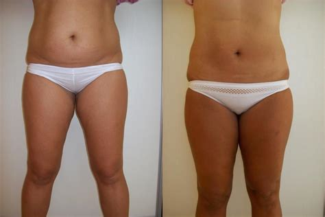 Liposuction  Lipo Injections For Weight Loss  Weight. How To Lower Interest Rates On Student Loans. Best Safari In Tanzania Kitchen Remodel Price. Deploy Software With Group Policy. When You File Bankruptcy What Do They Take. Rapid Prototype Machine For Sale. Online Safety Certification Courses. Current Auto Loan Interest Rate. How Much Does Laser Eye Cost