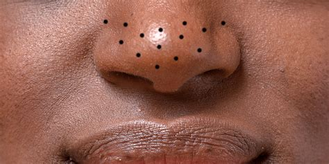 How to Get Rid of Blackheads on Your Nose, Chin, and ...