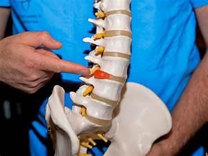 Лечение остеохондроза шейного отдела смещение позвонков