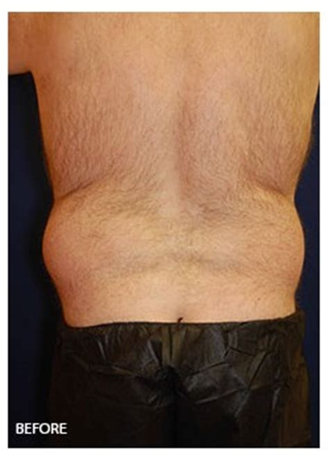 Liposuction Back and Waist Before/After