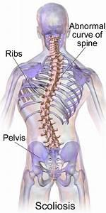 Scoliosis - Adults  U0026 Children