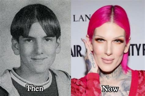 Jeffree Star Before and After Surgery