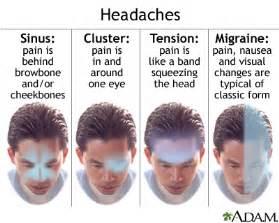 exo earrings tension headache medlineplus encyclopedia
