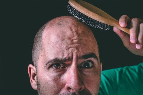 When Will There Ever Be a Cure for Baldness? - Nanalyze