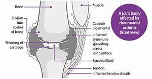 3d Printed Custom Splints For Arthritis