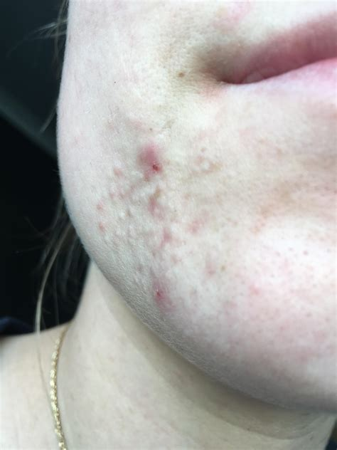 small flesh colored bumps on small flesh colored bumps on forehead and hairline
