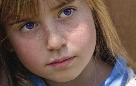 Purple Eye Disease Symptoms And Causes