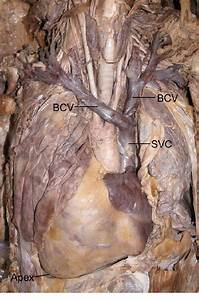 A Photograph Showing The Dextrocardia And The Left