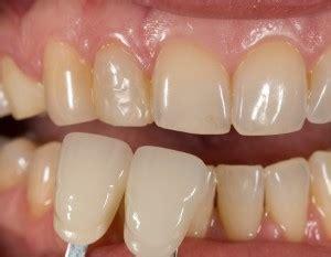 case  feldspathic veneers teeth     house