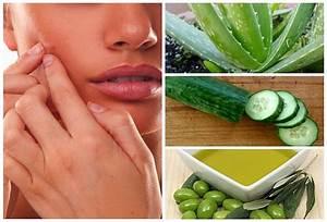 eliminar manchas producidas por acne o espinillas With como eliminar las espinillas con estos efectivos remedios caseros