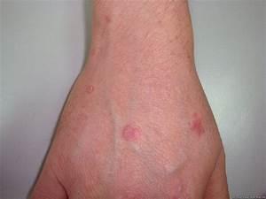 Псориаз при вич-инфекции фото