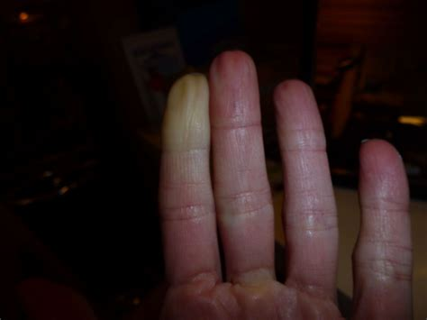 Raynauds Disease Pictures