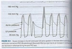 Pedi Cardiology  Hcm