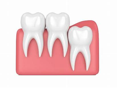 Wisdom Tooth Impaction Vertical Dental Extraction Wisdomtooth