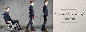 Signs And Symptoms Of Paralysis