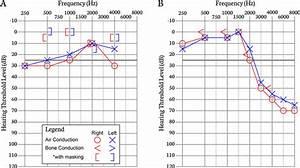 A  Audiogram Illustrating A Bilateral Conductive Hearing