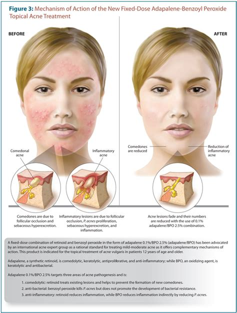 developments   topical management  acne