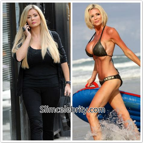 Success stories Archives   Celebrity Weight Loss and Celebrity Plastic Surgery