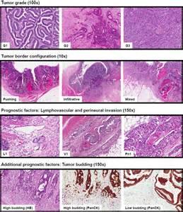 Adenocarcinoma Colon Cancer