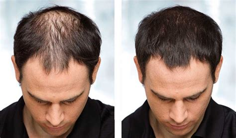 Effective Hair Loss Treatments for Men and Women