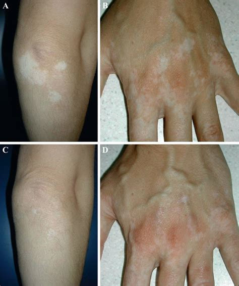 Narrow Band Uvb Ls For Vitiligo by Libbey Eurotext European Journal Of Dermatology