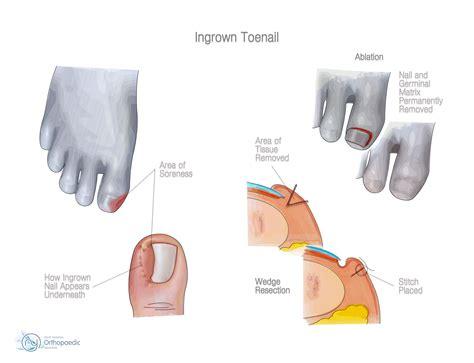 ingrown toenail orthopaedic adam budgen