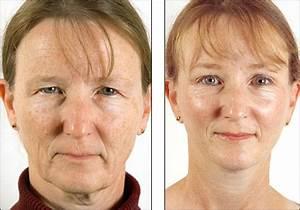 The Regenerist | Testing the tools of longevity and ...