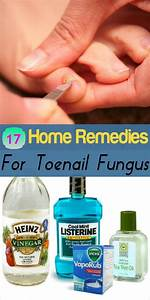 Homeremedyshop  17 Home Remedies For Toenail Fungus