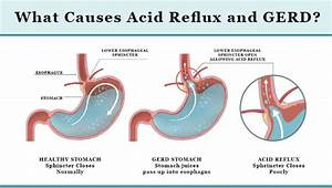Causes Of Acid Reflux