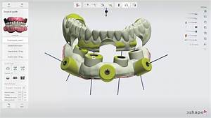 3shape Implant Studio 2017  Edentulous Case