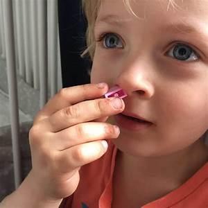 Was Tun  Wenn Dem Kind Etwas In Der Nase Steckt