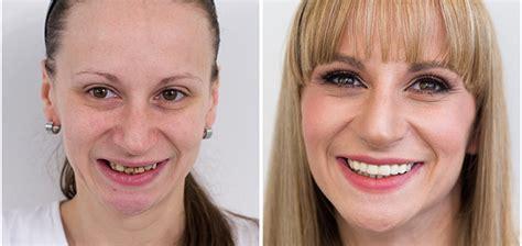 A complete teeth makeover - Dental Center Štimac