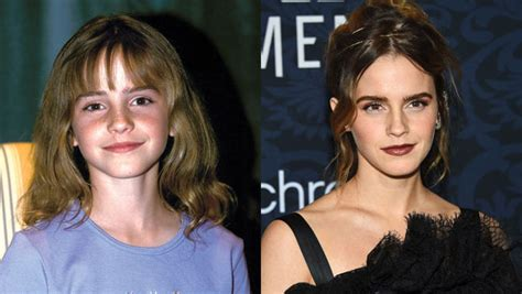 Emma Watson Then & Now: Photos Of Her Transformation ...