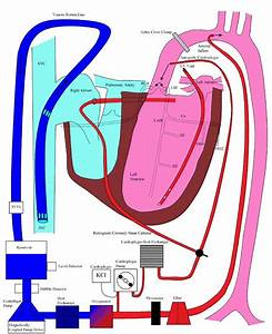 Cardiopullmonary Bypass At Cardiacengineering Com