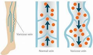 Varicose Veins Archives