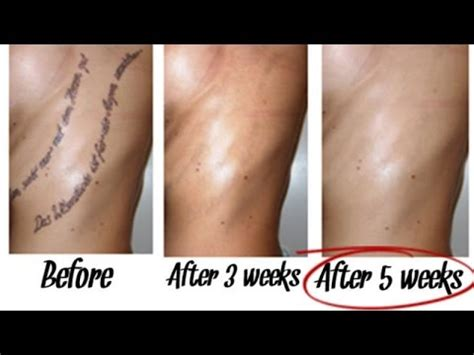remove tattoos naturally   weeks youtube
